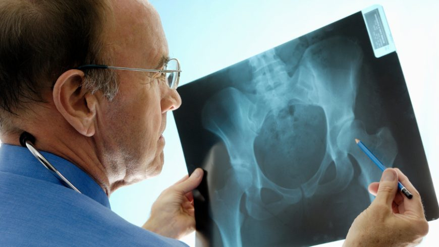 Osteoporosis: Winning the Battle Against Bone Loss