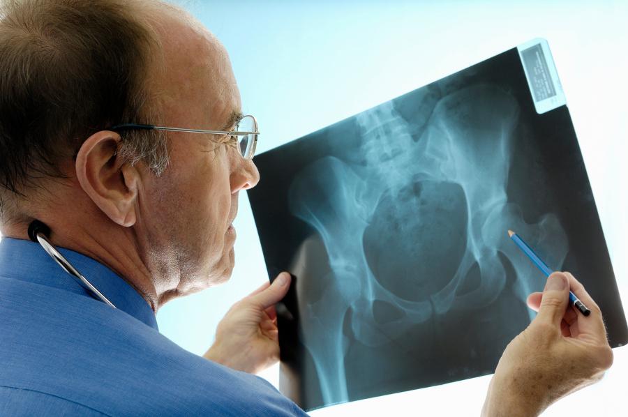 Osteoporosis: Winning the Battle Against Bone Loss