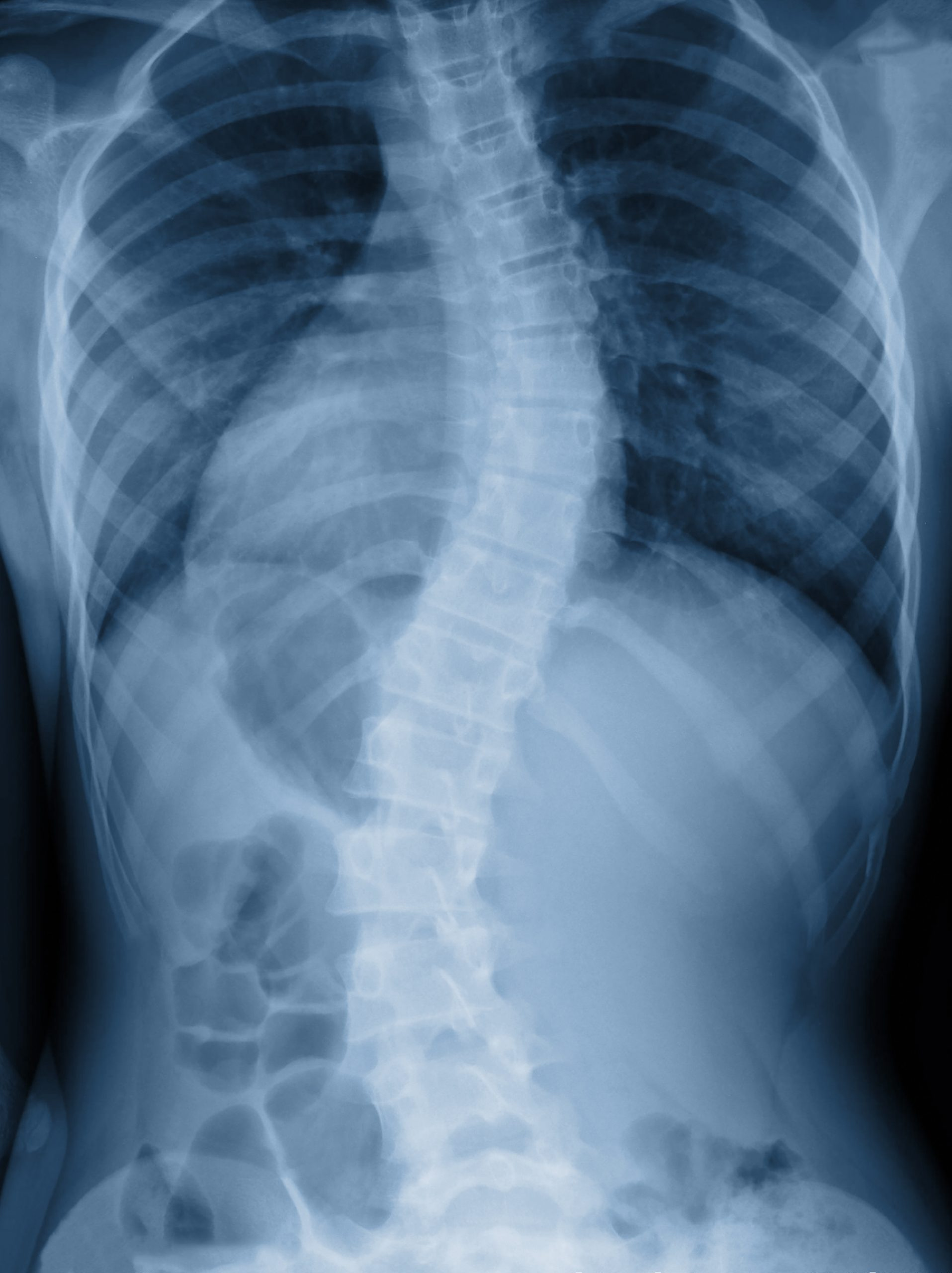 Understanding a Scoliosis Diagnosis