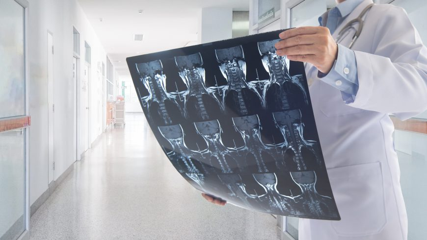 Malignant Spinal Tumors and Their Treatment