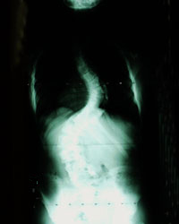 x-ray-scoliosis
