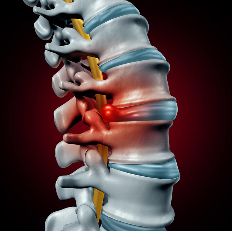 A Herniated Disc or a Bulging Disc: Is There a Difference, and How Can I Tell?