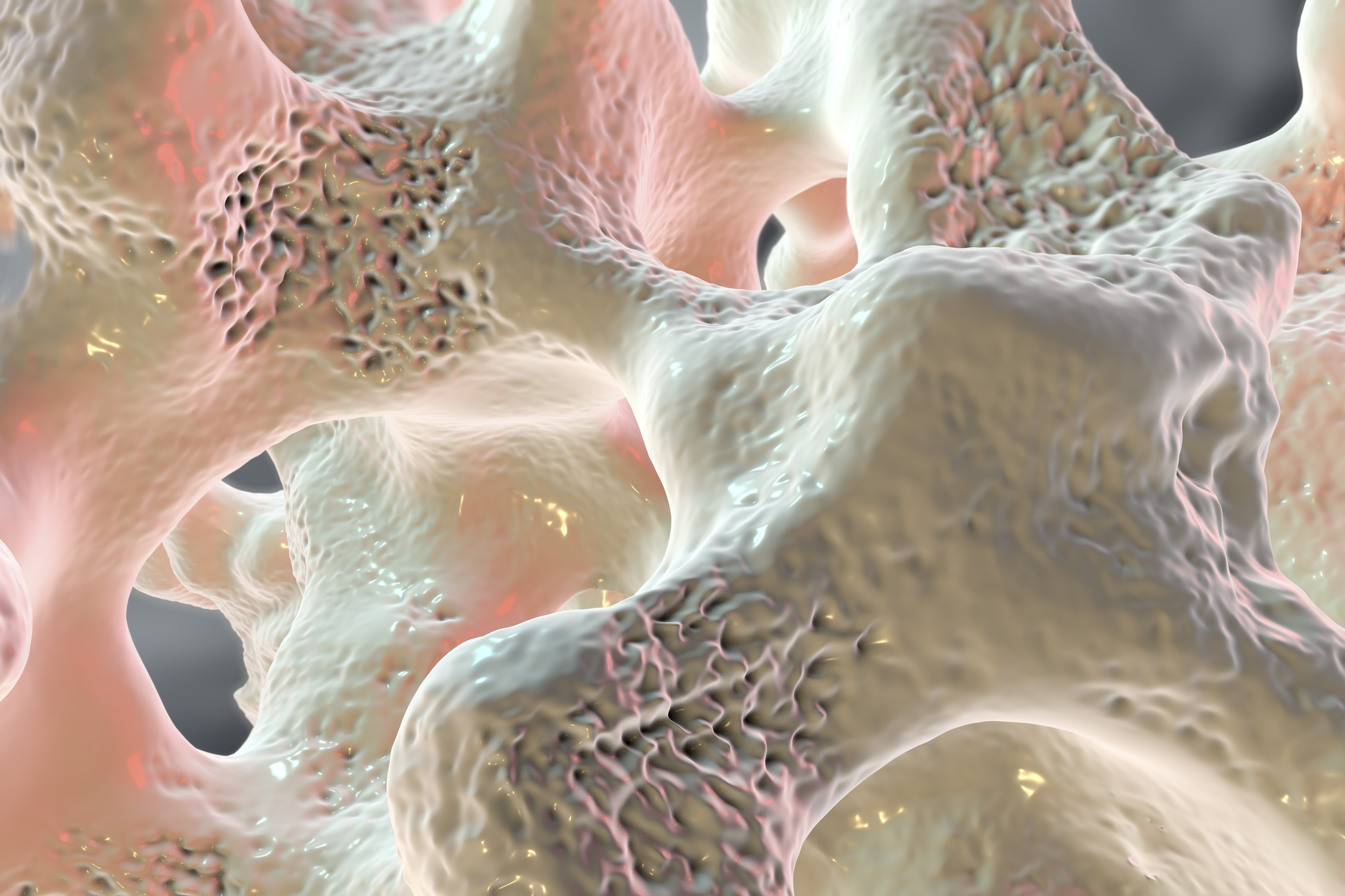 Osteoporosis and Spinal Compression Fractures