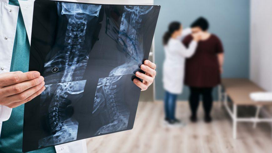 Benign Spinal Tumors